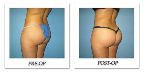 buttock enhancement